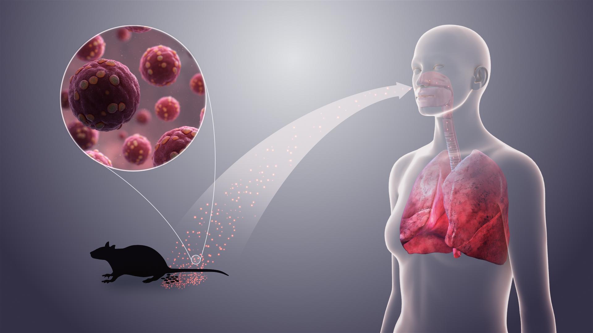 Hantavirus Pulmonary Syndrome| EDF